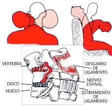 ejercicios aliviar cervicales
