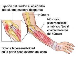 epicondilitis ejercicios musculacion